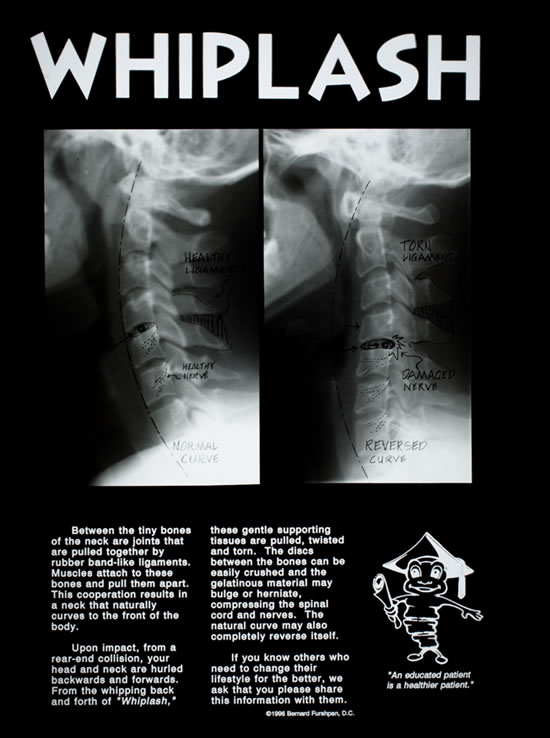 Parts Of A Column >> Good Stuff to Know – Temecula Chiropractic Center